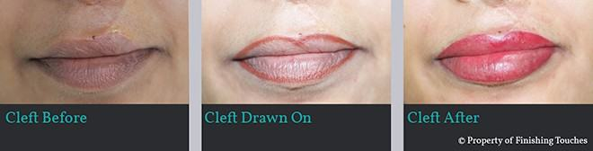 undefined lips