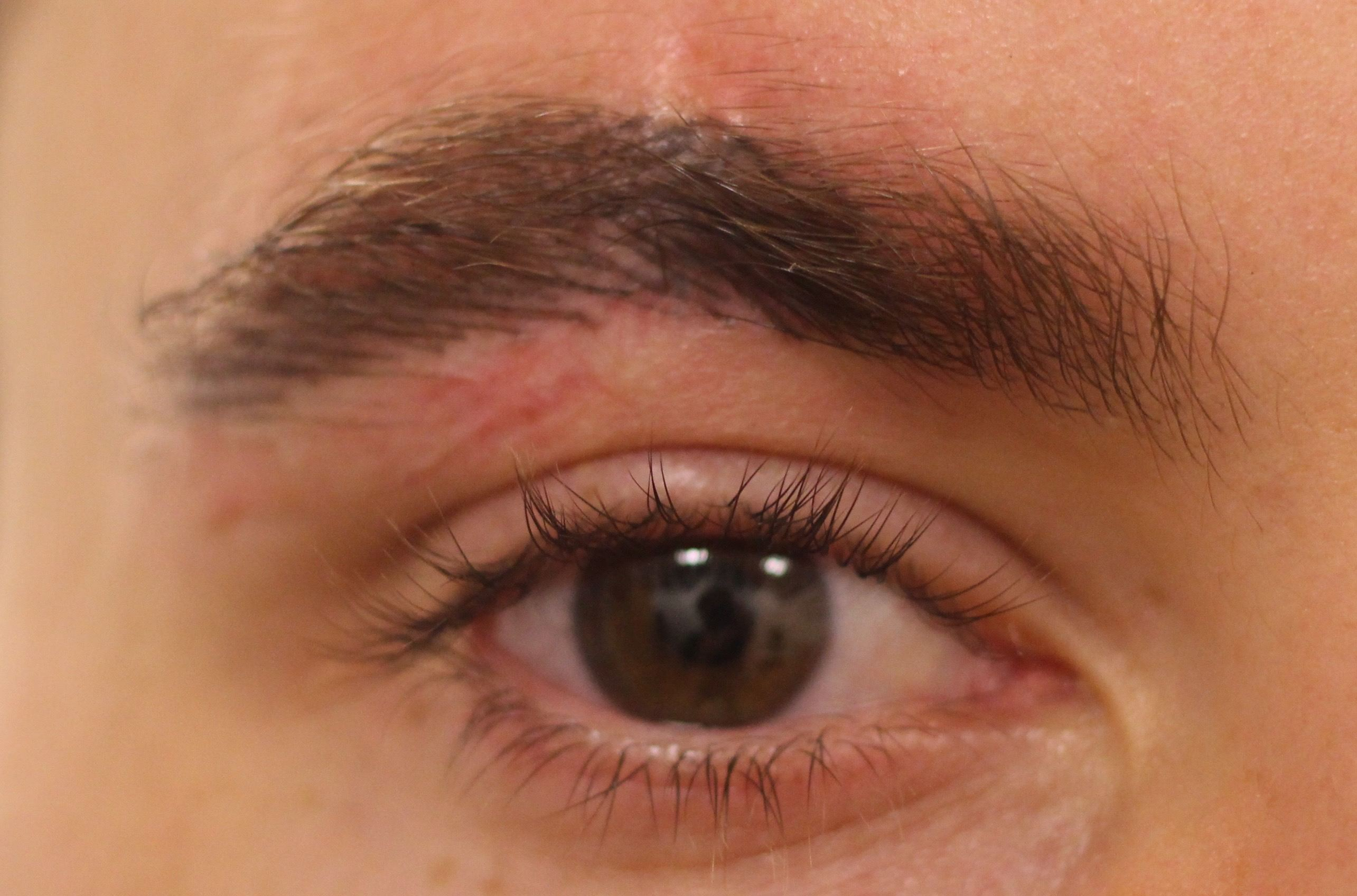 1.brow scar After