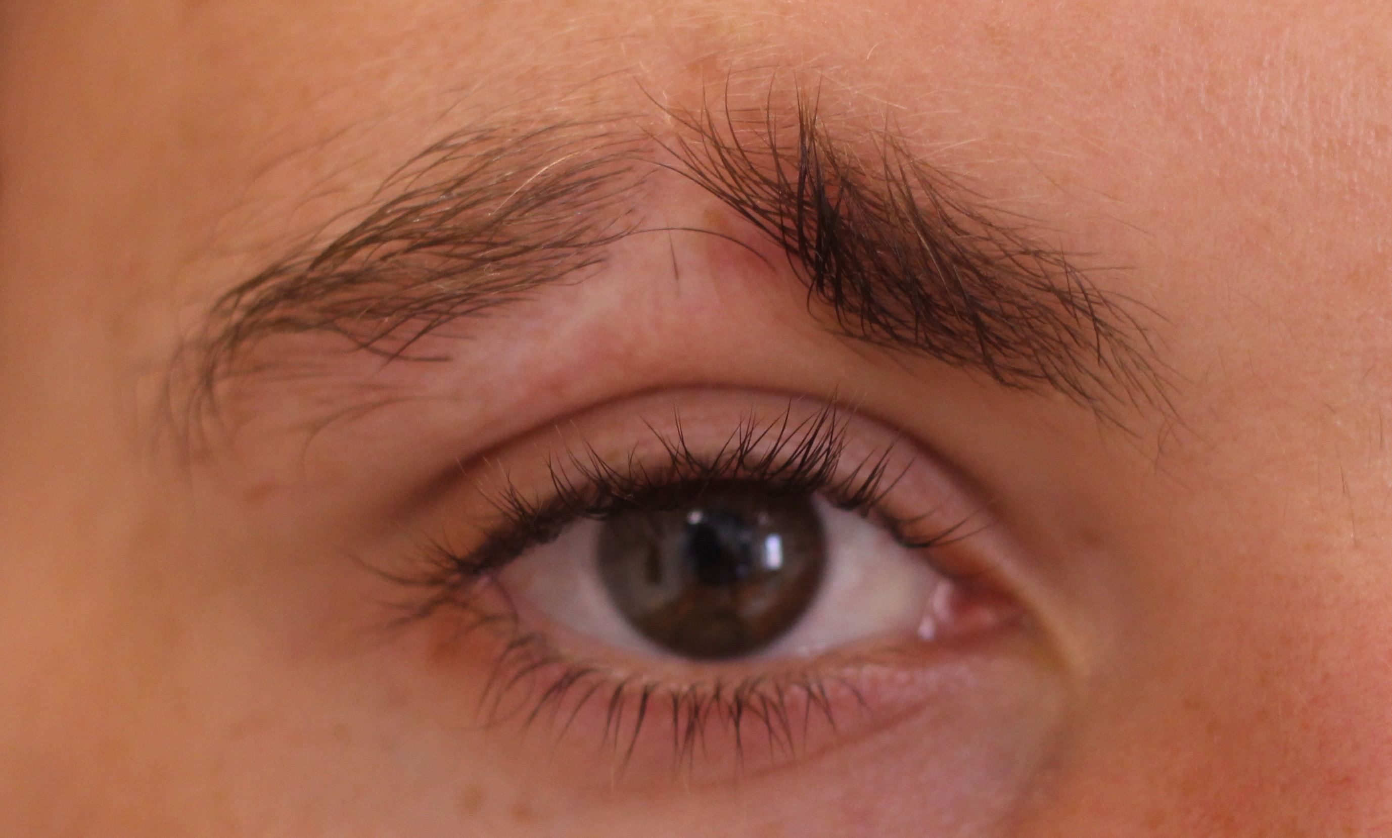 2.brow scar Before