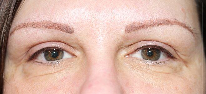 Brows & lash line 2 wks post treatment