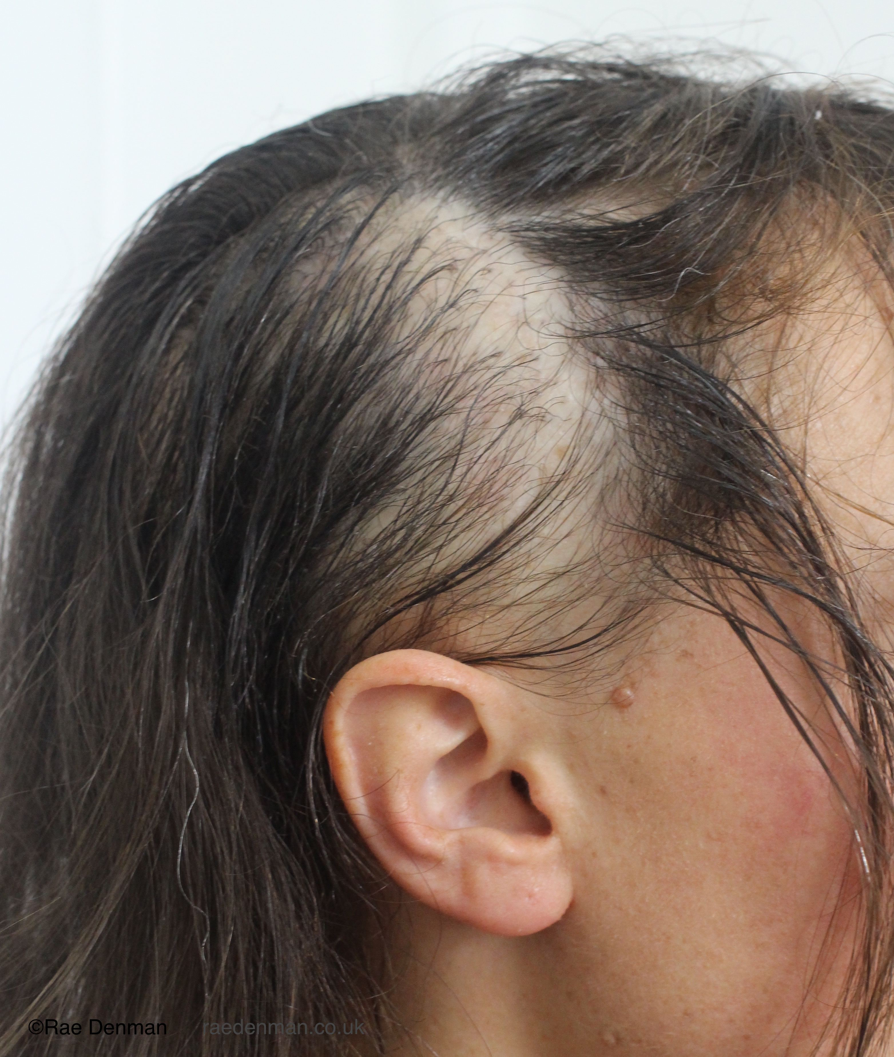 Patchiness due to thin hair