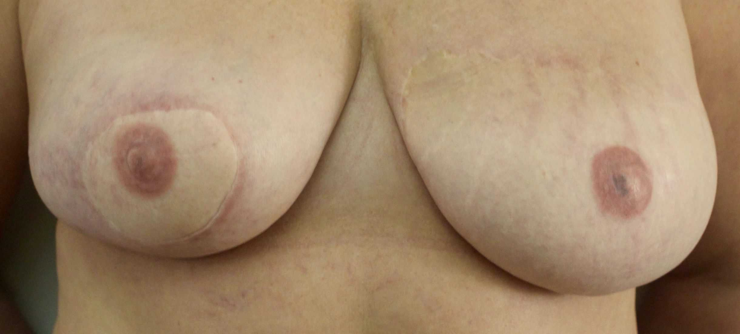 After 3D Nipple/ Areola Tattooing
