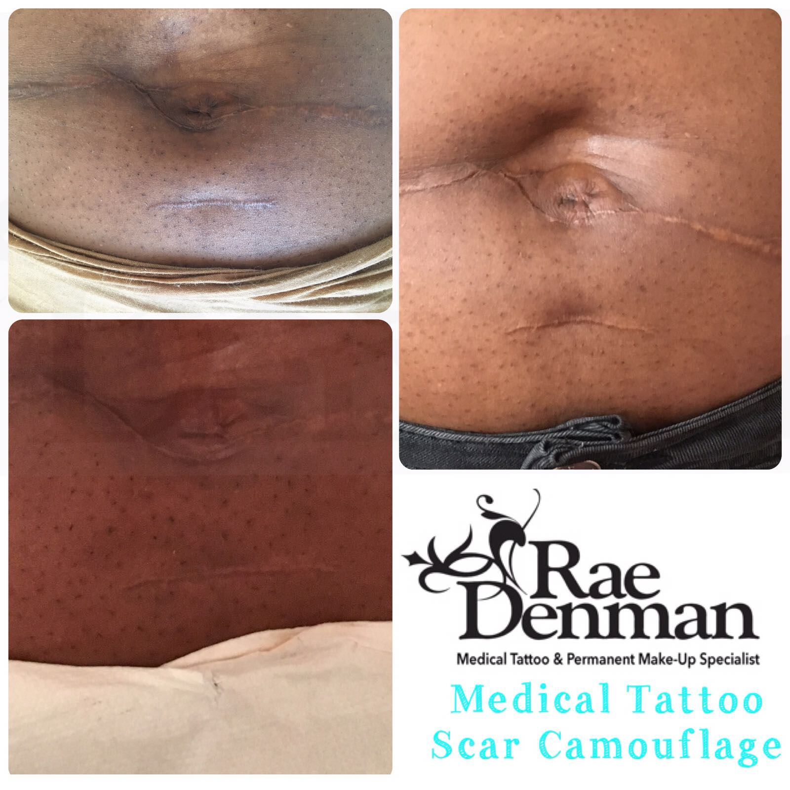 Camouflage scars with Medical Tattooing - Rae Denman
