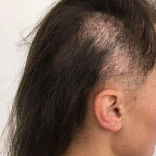 hair loss medical tattoo before