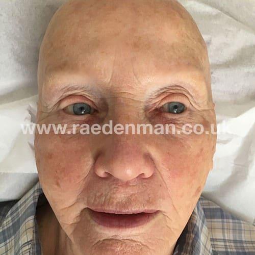 eyebrow medical tattoo before