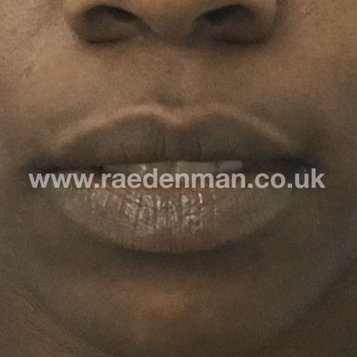 medical tattooing patchy lips after