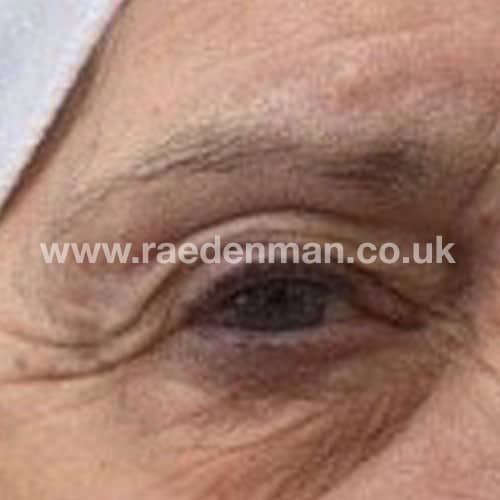 eyebrow medical tattoo before