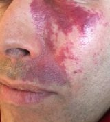 Do you have a Port Wine Stain that concerns you?
