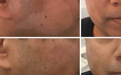 Do you suffer with Hypo-Pigmentation? Medical Tattooing can help.