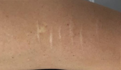 Self Harm Scarring Camouflage with Medical Tattooing